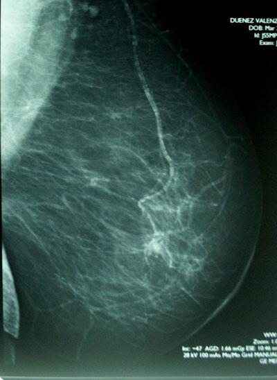 Rak piersi na mamografii