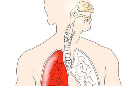 Jakie są objawy raka płuc?