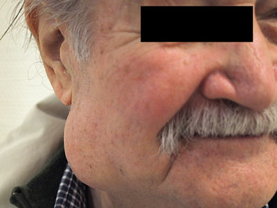 Widoczny guz ślinianki. Źródło: Wikipedia