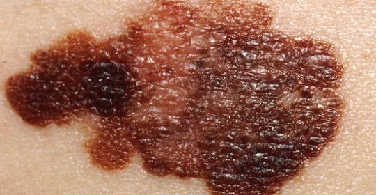 Objawy czerniaka