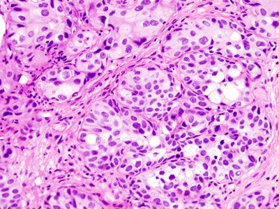 Objawy raka pęcherza moczowego