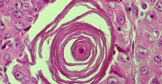 Objawy raka tarczycy