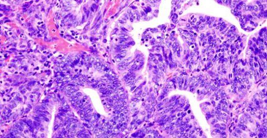 Objawy raka trzonu macicy