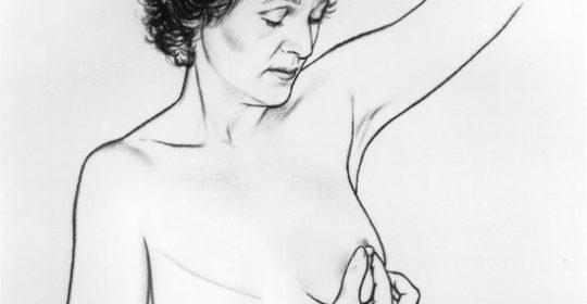 Mastektomia przy raku piersi