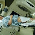 skutki uboczne po radioterapii