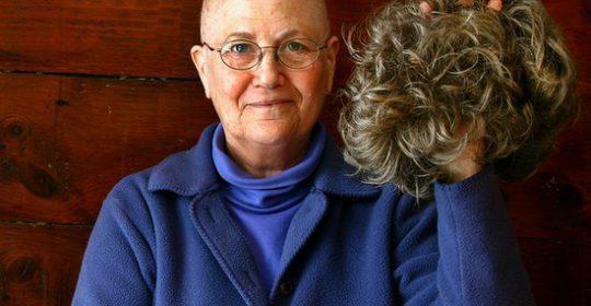Wypadanie włosów przy chemioterapii – dlaczego wypadają?