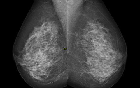 Mammografia 3D z tomosyntezą w wykrywaniu nowotworów