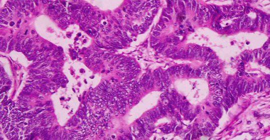 Jak powstają przerzuty nowotworowe?