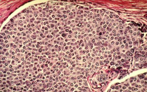 Nowotwory – a co to takiego? Jak powstają nowotwory?