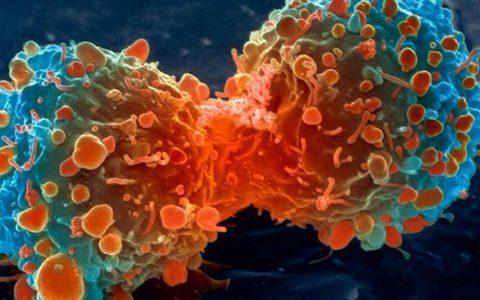 Neoangiogeneza, czyli jak organizm pomaga guzowi rosnąć – unaczynienie nowotworu