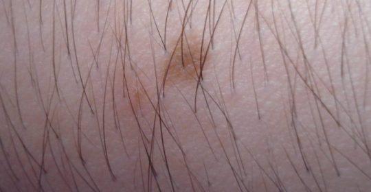 Znamiona barwnikowe czyli dlaczego pieprzyki mogą być niebezpieczne?